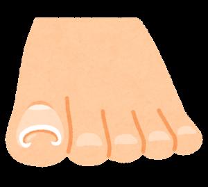 巻き爪 イラスト